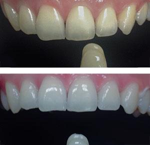 Отбеливание зубов по акции в СПб: до и после