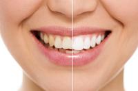 Отбеливание зубов 9 000 р.