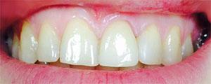 Виниры на зубы в СПб: примеры работ, фото до и после
